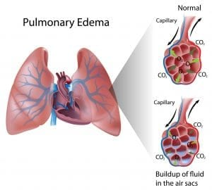 Du liquide commence à s'amasser dans les poumons.